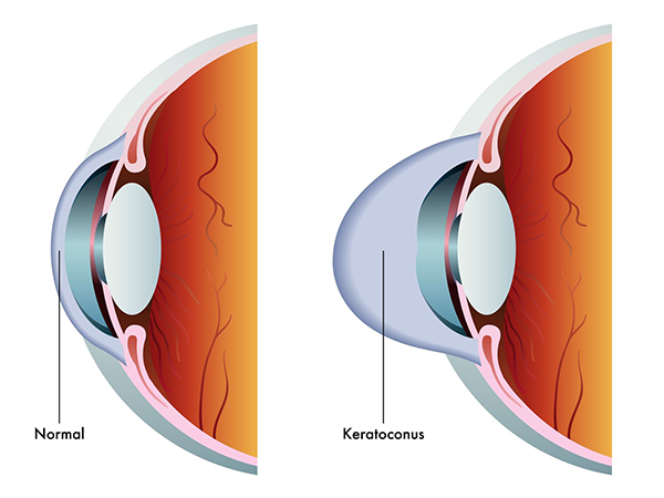 keratoconus in turnersville