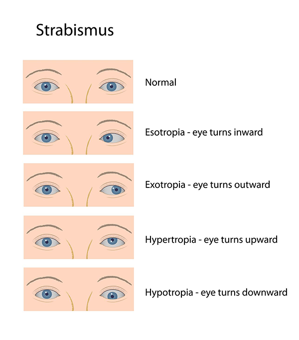 strabismus in turnersville